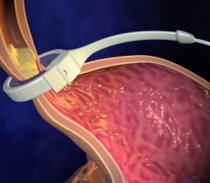 Cum functioneaza Inelul Gastric?