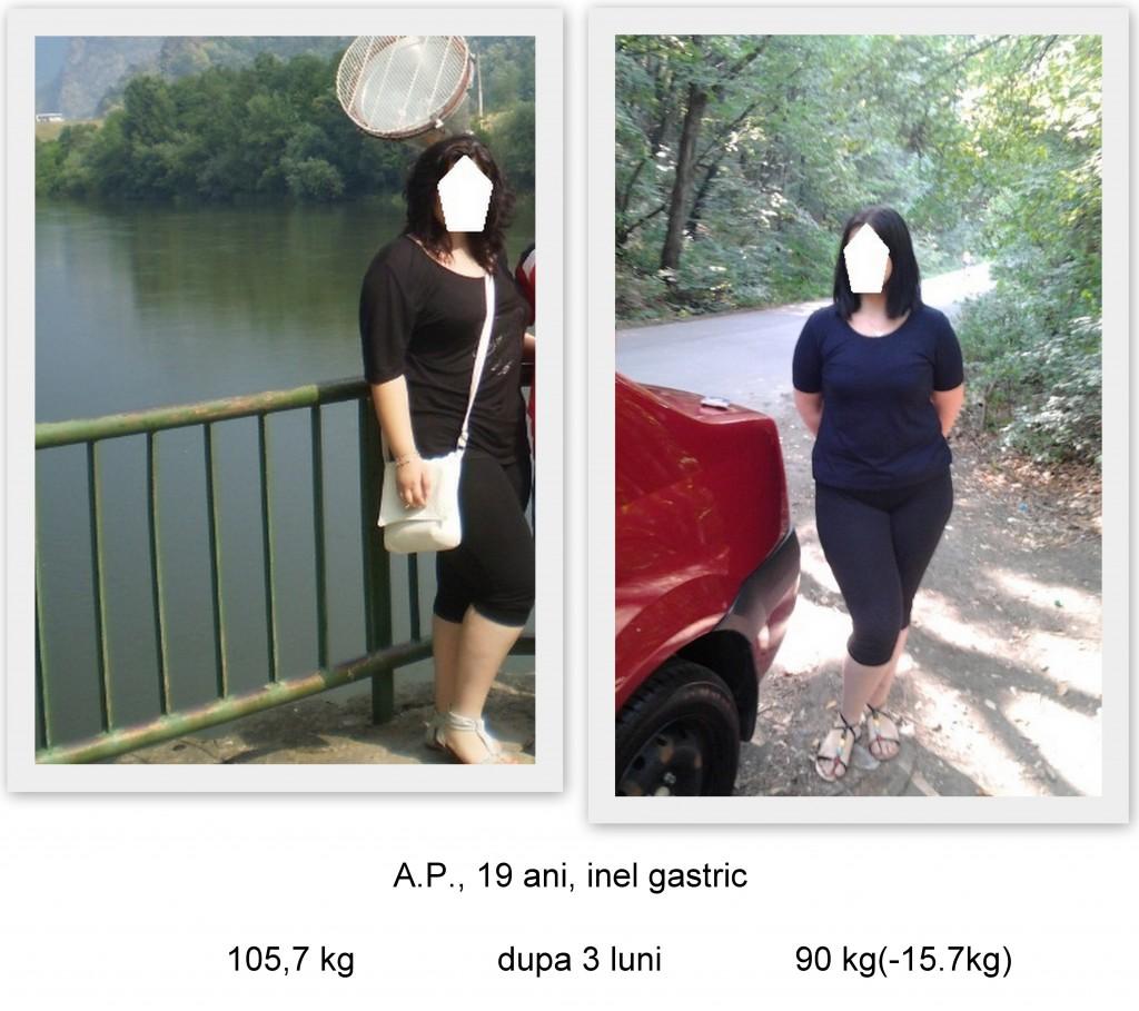rezultate inel gastric