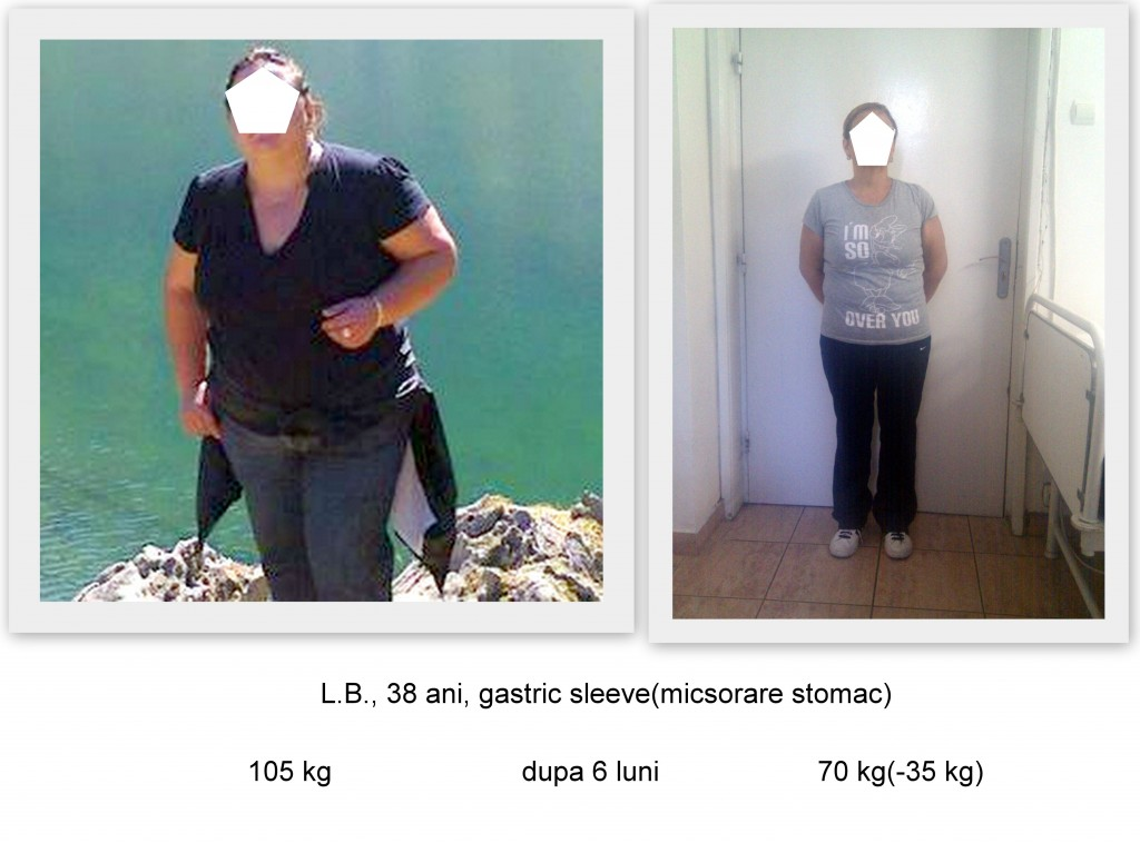 rezultate gastric sleeve