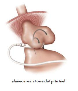 inel gastric